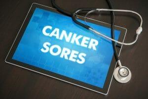 canker sores