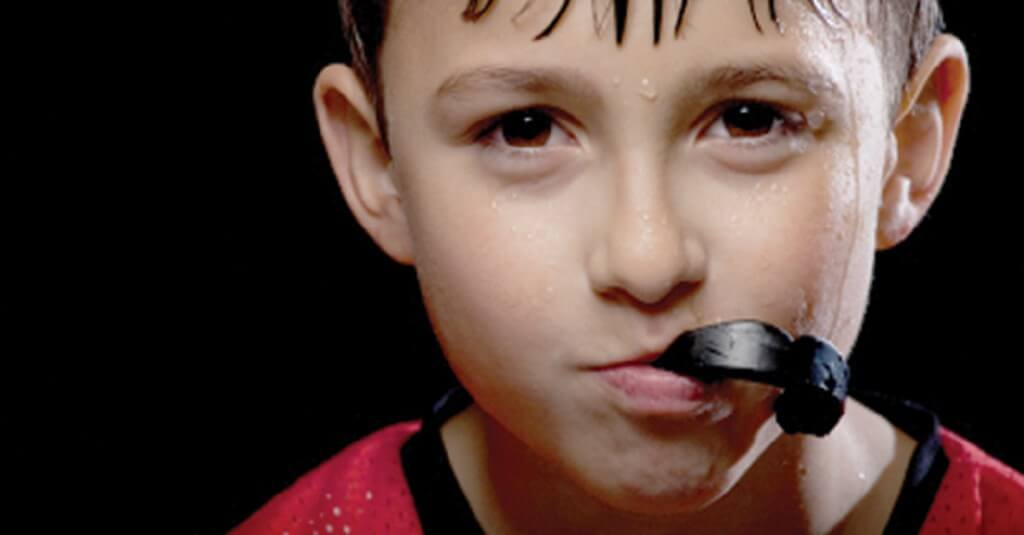 mouth-guards-1024x535