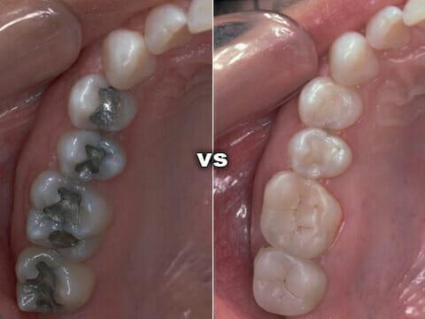 Amalgam Fillings New Albany Center For Dental Health