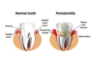 illustration of gum inflammation